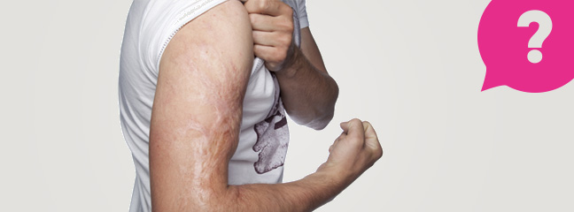 man flexing arm with burn injuries